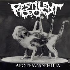 Apotemnophilia