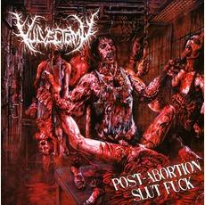 Post-Abortion Slut Fuck mp3 Album by Vulvectomy